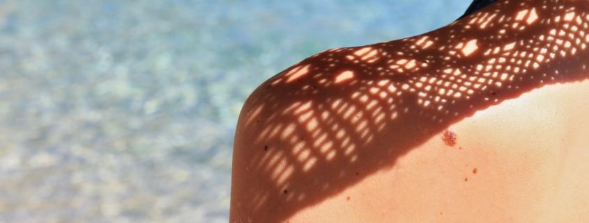 huid checken
